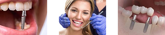 Преимущества базальных зубных имплантатов с немедленной установкой